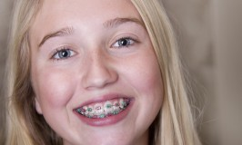 Orthodontics: What you can do now to get ready for that bill